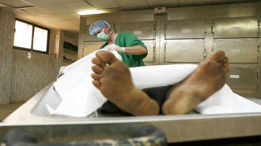 درمان 140 بیمار با استفاده از بافت یک جسد ، جسدهای آموزشیِ اهداشده چند سال بعد دفن می شوند؟ ، اهدای کالبد آموزشی محدودیت سنی ندارد