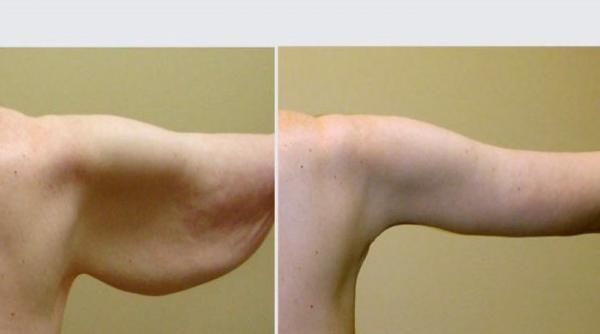 چه روش هایی برای لیفت بازو وجود دارد؟